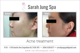 acne-beforeafter